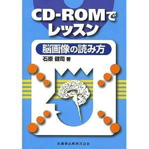 CD-ROMでレッスン脳画像の読み方